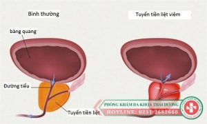 Tổng hợp các bệnh về tuyến tiền liệt và cách điều trị hiệu quả