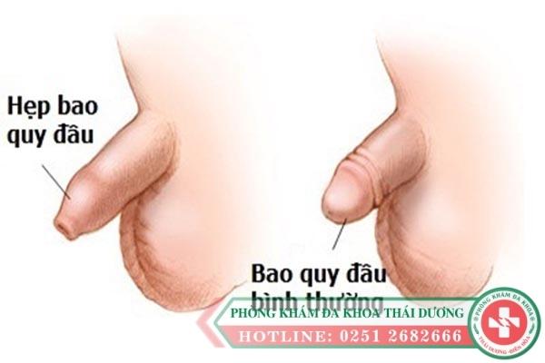ob_fec3a8_phuong-phap-khac-phuc-hep-bao-quy-dau