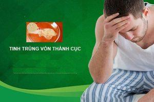 Tinh trùng vón cục nguyên nhân triệu chứng và cách điều trị hiệu quả