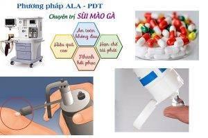 Phương pháp ALA – PDT điều trị sùi mào gà hiệu quả