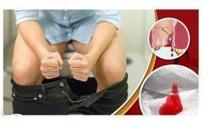 Đi cầu ra máu nguyên nhân và cách chữa trị hiệu quả