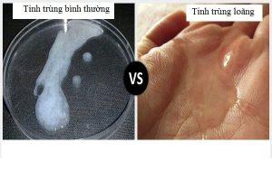 Tinh trùng loãng là như thế nào – chữa trị ra sao?