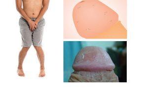 Tróc da bao quy đầu là bị gì làm sao để khắc phục?
