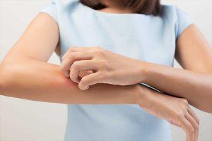 Chữa trị ghẻ ngứa như thế nào hiệu quả?