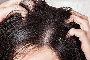 Cách trị gàu và nấm da đầu hiệu quả