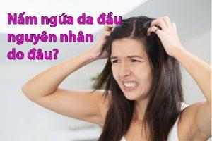 Nấm ngứa da đầu nguyên nhân do đâu?