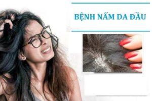 Bệnh nấm da đầu là gì có nguy hiểm không?
