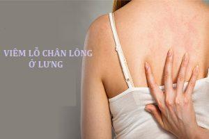 Nhận biết bệnh viêm lỗ chân lông ở lưng
