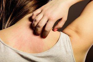 Nốt đỏ và ngứa trên da là bị bệnh gì?