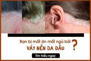 Tổng hợp những kiến thức về bệnh vẫy nến da đầu