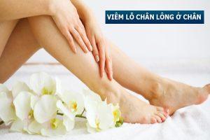 Viêm lỗ chân lông ở chân là như thế nào? Điều trị ra sao?