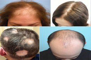 Chữa trị hói đầu như thế nào hiệu quả?