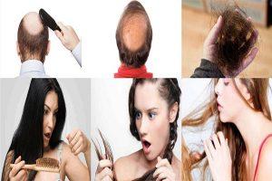 Dấu hiệu nhận biết bệnh rụng tóc