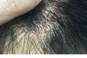 Viêm nang tóc nguyên nhân dấu hiệu và cách chữa trị