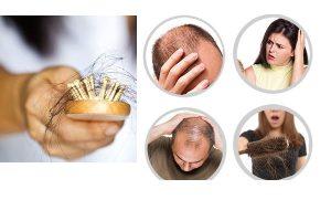 Cách mọc tóc nhanh hiệu quả có thể bạn chưa biết