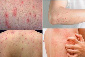 Da bị nổi mẩn đỏ có nguy hiểm không?
