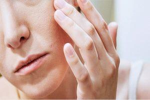 Da mặt bị ngứa và sần sùi phải làm sao?