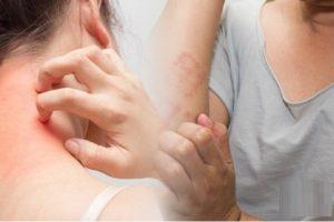 Mẩn đỏ ngứa dưới da phải làm sao?