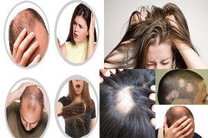 Chữa trị ngứa da đầu và rụng tóc ở đâu hiệu quả?