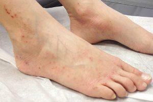 Ngứa mẩn đỏ ở chân nguy hiểm như thế nào?