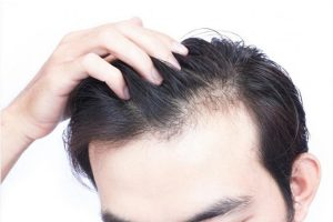Tổng quan về bệnh rụng tóc