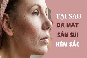 Tại sao da mặt bị sần sùi?
