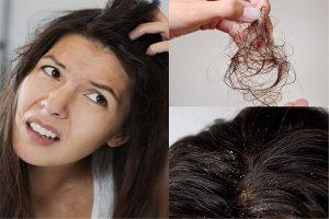 Cách trị gàu và rụng tóc an toàn, hiệu quả