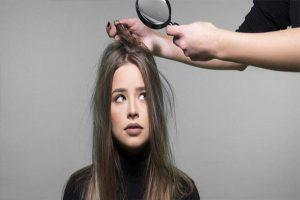 Triệu chứng rụng tóc báo hiệu bệnh gì?